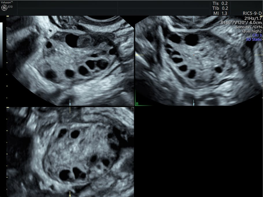 PCOS Diagnosis & The Role of Pelvic Ultrasound | Empowered