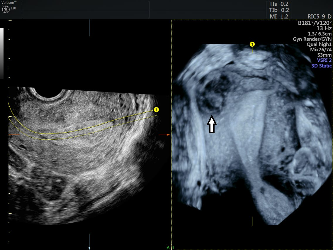 The Benefits of 3D Ultrasound in Gynecology | Empowered