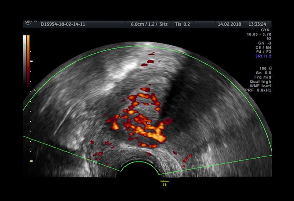 Uncovering Endometriosis Vs Endometrial Cancer Empowered Women S Health