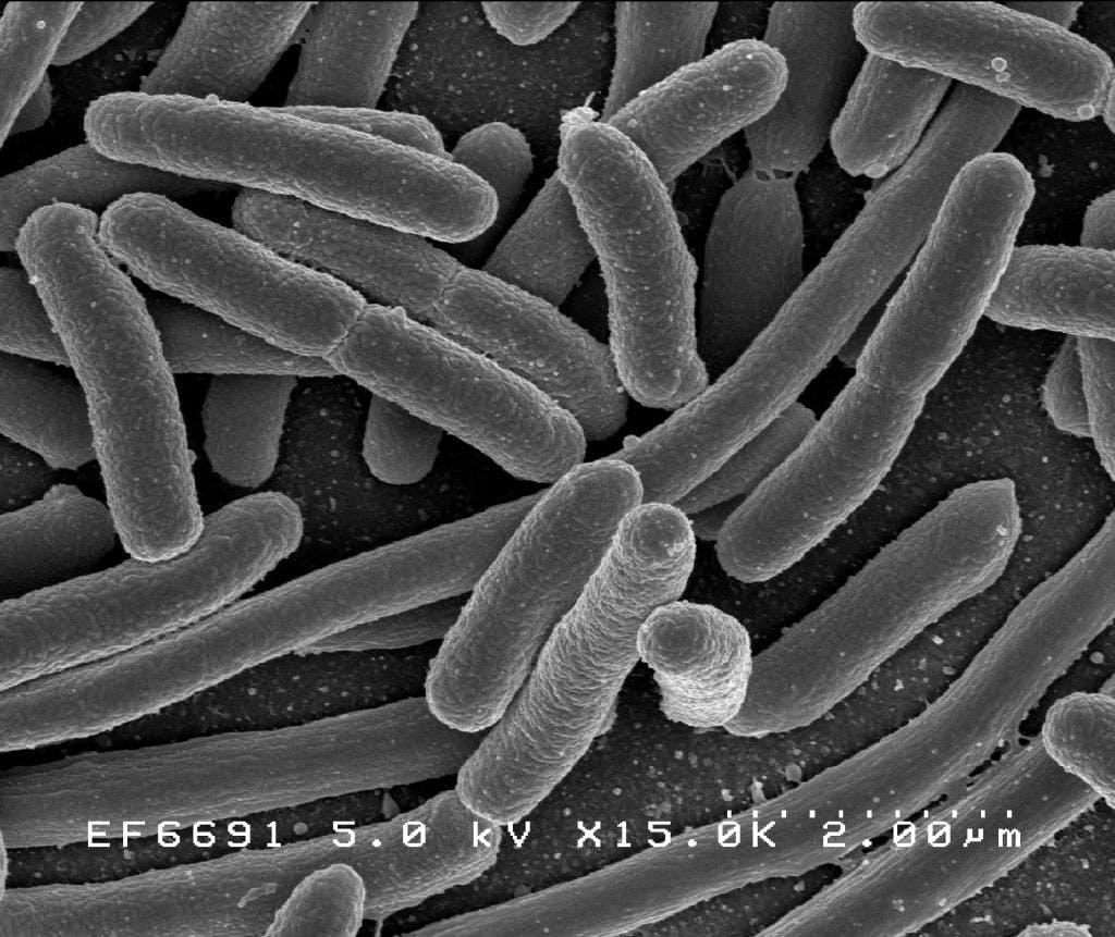 E. coli micrograph