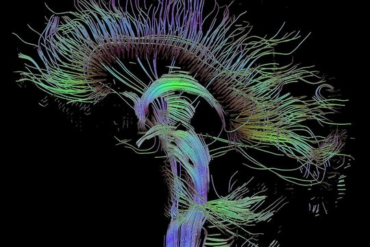 Visualization of a DTI measurement of a human brain, showing the pathway taken by different neural fibers.