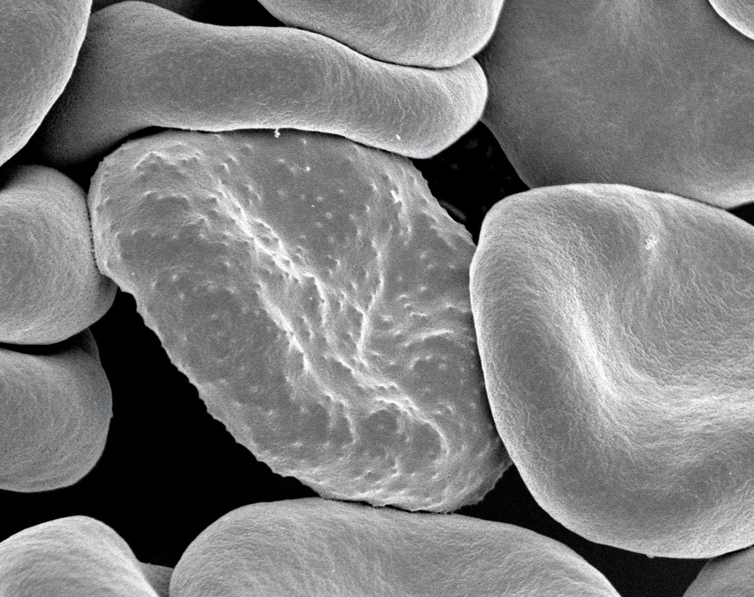 Red blood cells infected with Plasmodium falciparum, the parasite that causes malaria in humans. During its development, the parasite forms protrusions called 'knobs' on the surface of its host red blood cell which enable it to avoid destruction and cause inflammation.