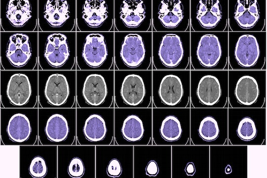 series of CT scans of brain and skull, some purple