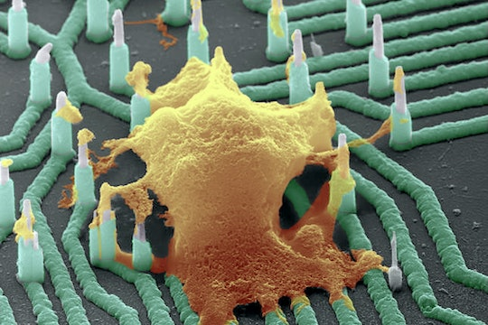 A neuron hooked up to a nanowire array, to read the neuron's electrical activitiy.