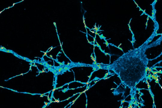 an image of a mouse neuron highlighted in blue and green