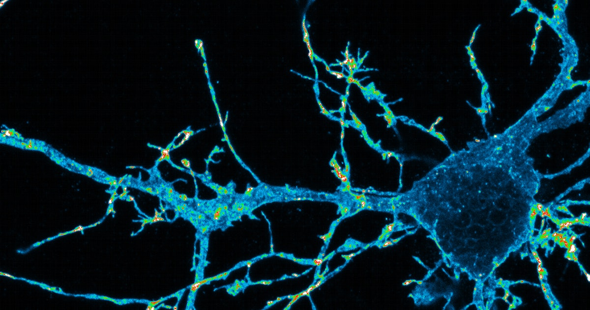A trio of imaging techniques brings new insight into how neurons work