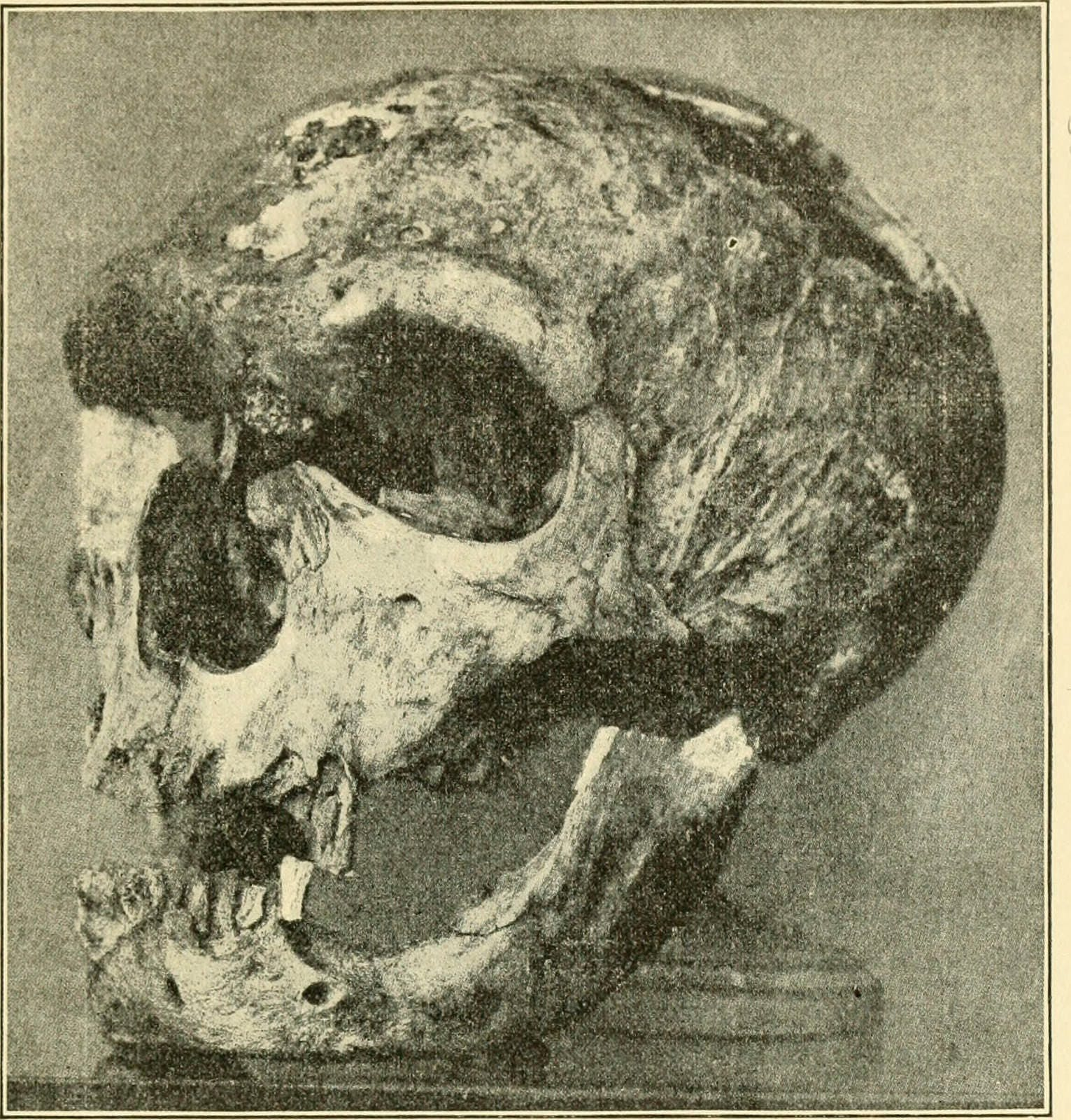 Skull of a Neandertal man.