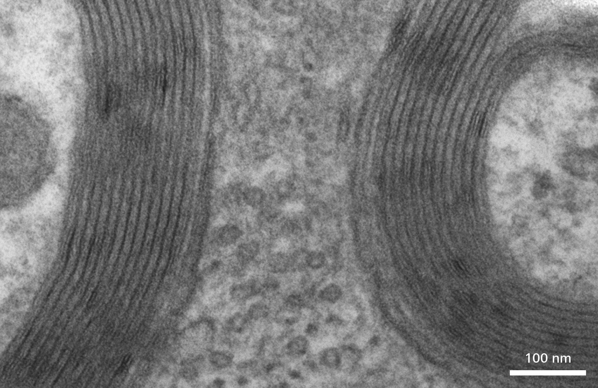 myelin tree rings