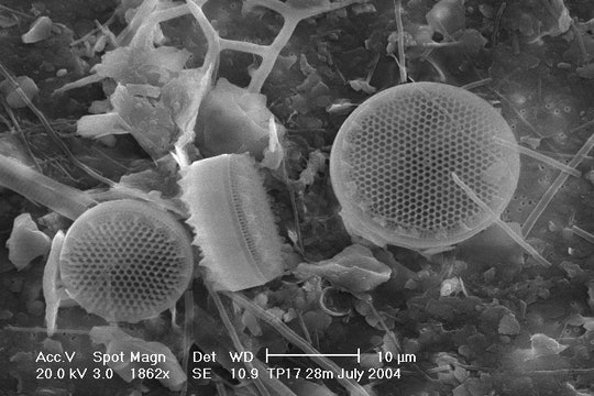 Suspended particulate matter (SPM) in Thermaikos Gulf, Greece, 2004. Scanning electron microscope (SEM) backscattered images of SPM collected on a membrane filter (pore size 0.4 μm). Diatoms Chaetoceros spp. can be identified.