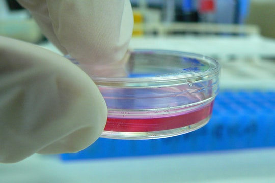 A petri dish with cell culture medium.