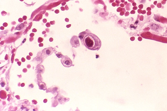 Lung tissue with a HCMV infection