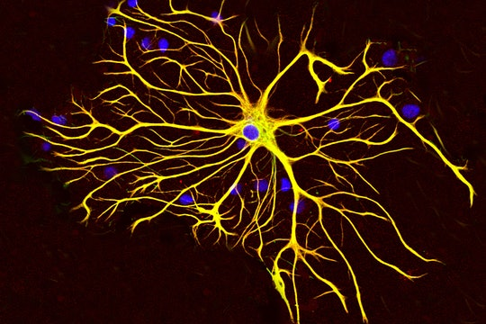 An astrocyte, a type of brain cell.