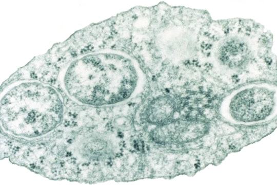 micrograph of the wolbachia bacterium