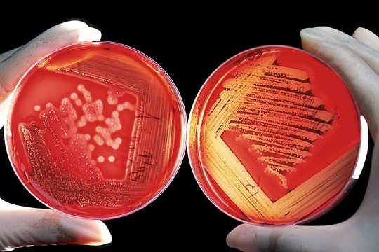 person holding two petri dishes of bacteria