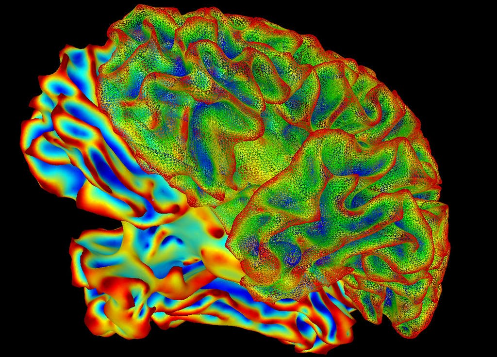 Multi-color whole brain image taken by fMRI