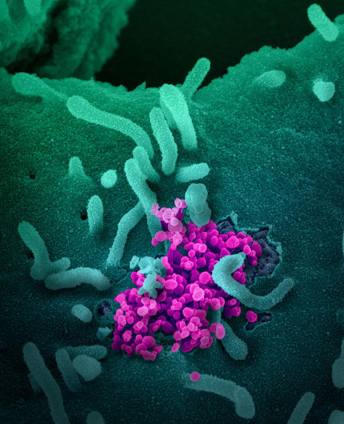 SARS-CoV-2, coronavirus, emerging from a cell cultured in a lab.
