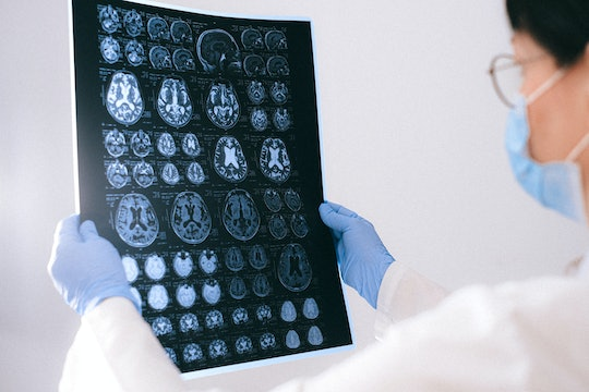 person holding up brain images