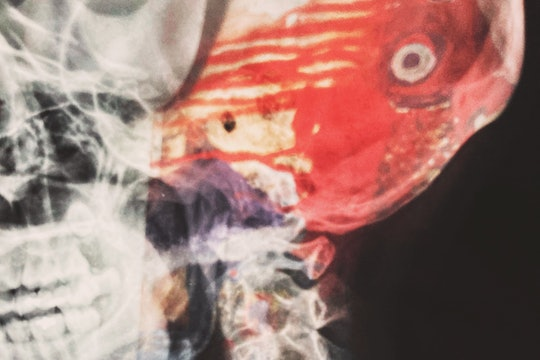 close up of a head xray with added colors