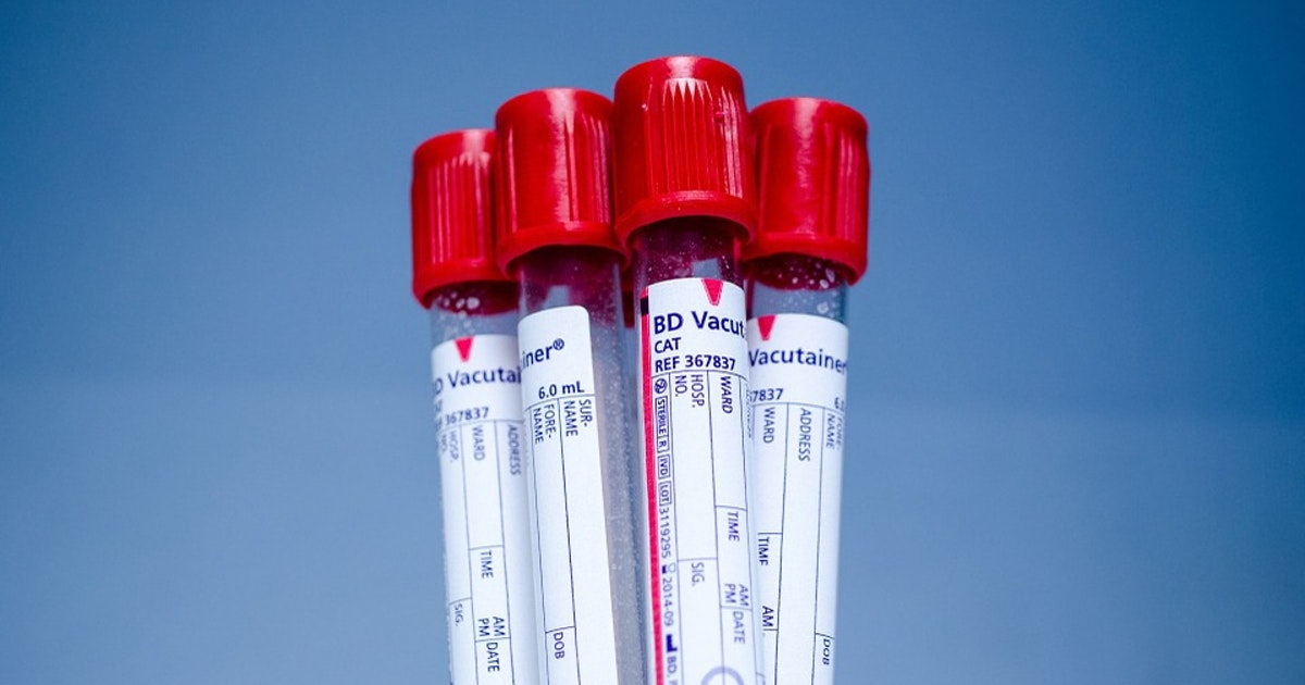 "Scientists develop a ""liquid biopsy"" that can detect many types of cancer through a simple blood test"