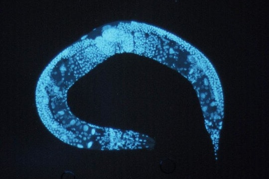 a stained blue roundworm against a black background