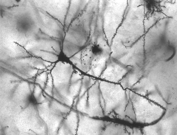 A microscopic image of neurons.