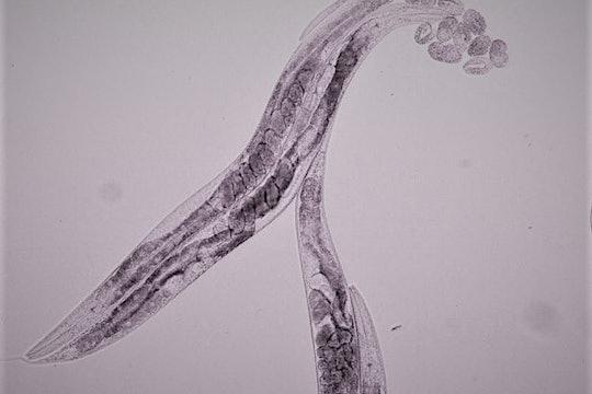 C. elegans with eggs