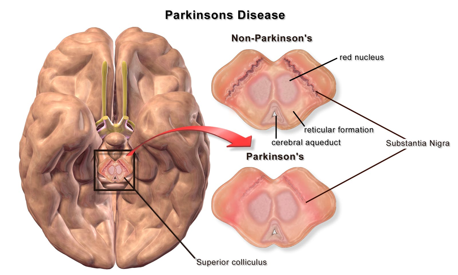 A bottom-up diagram of a brain of a patient with Parkinson's disease illustrating loss of pigmented cells in the Substantia nigra