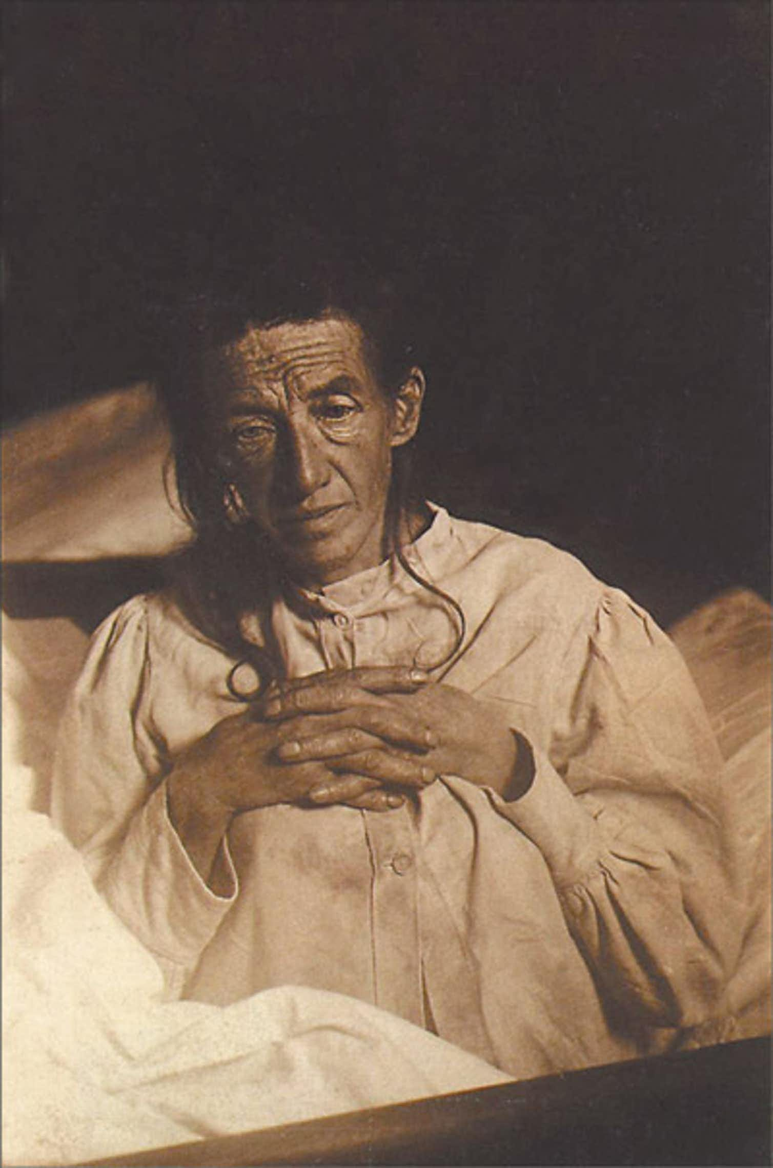 Auguste Deter, Alois Alzheimer's patient in November 1901, first described patient with Alzheimer's Disease.