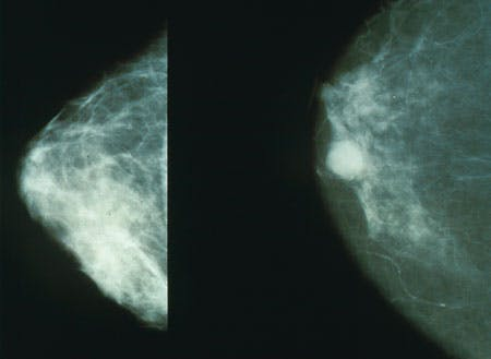 mammogram  cross section