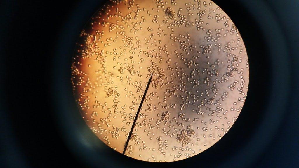 yeast under a microscope